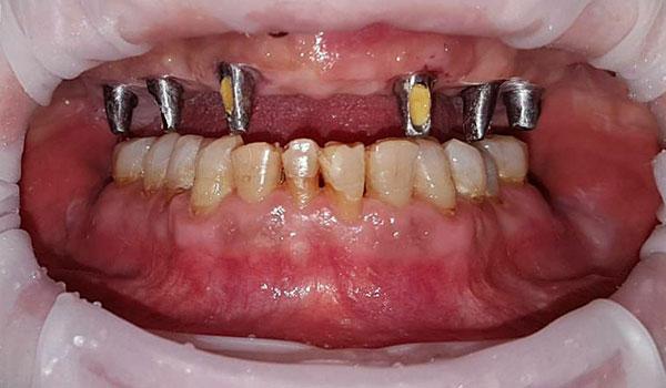 ایمپلنت-دندان1