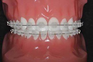 بریس های سرامیکی یا ارتودنسی شفاف