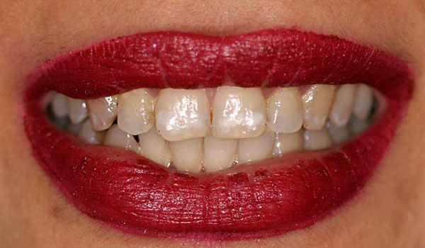 ترمیم-دندان