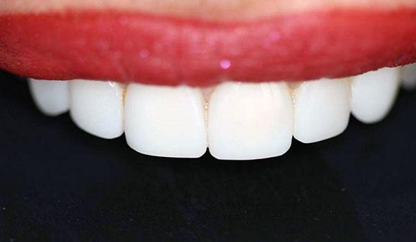 ترمیم-دندان2