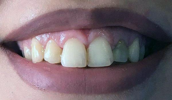 ترمیم-دندان3