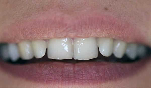 لمینیت-دندان1