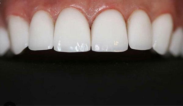 لمینیت-دندان2