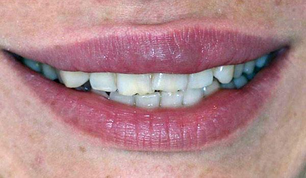 لمینیت-دندان3