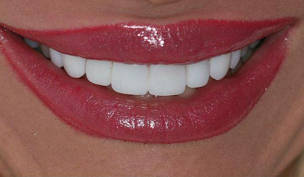 لمینیت-دندان4