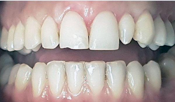 لمینیت-دندان5