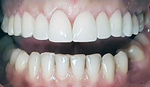 لمینیت-دندان6