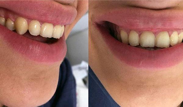 لمینیت-دندان7