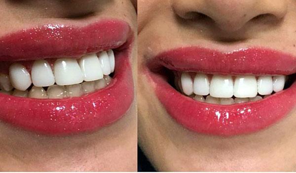 لمینیت-دندان8