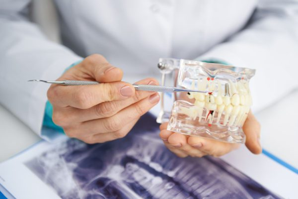 dental-implants-research-dentist--600x400