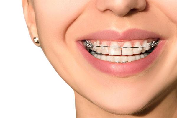 زمان ارتودنسی دندان بزرگسالان