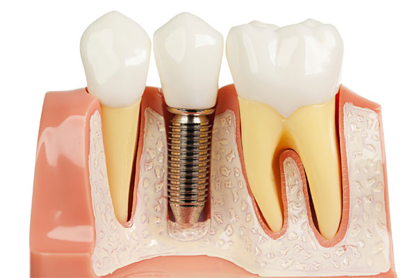 بریج دندان ایمپلنت شده