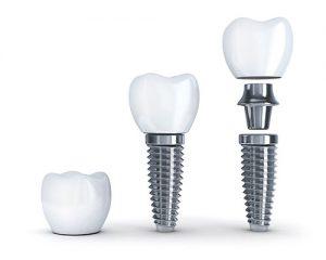 ترمیم ایمپلنت دندان