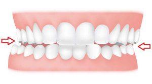 درمان کراس بایت دندان با ارتودنسی