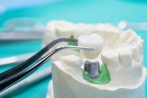 پاکسازی ایمپلنت دندان