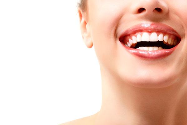 سفید کردن دندان های ارتودنسی شده