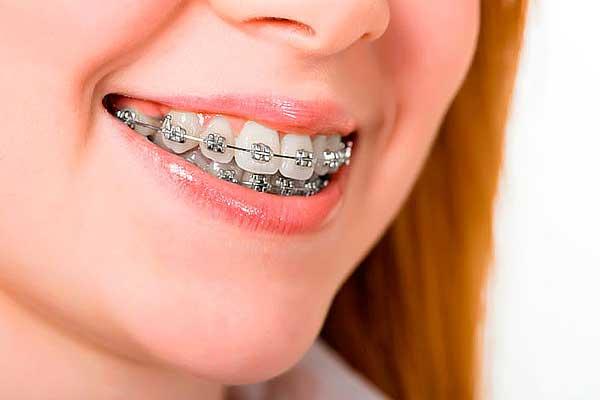 اهمیت ارتودنسی دندان