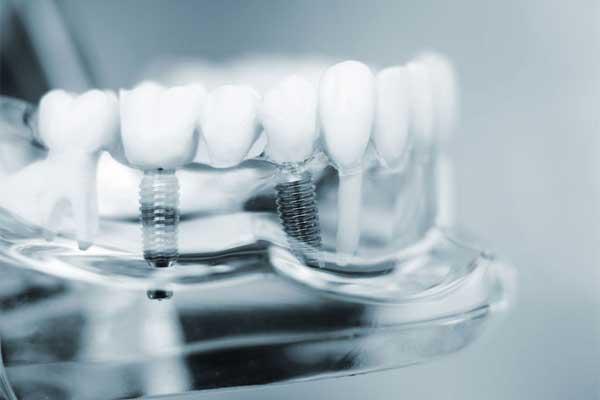 علل ایمپلنت دندان