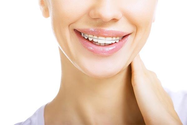 ریتینر بعد از ارتودنسی دندان
