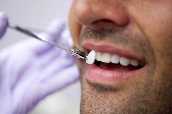 کاربرد لامینت دندان