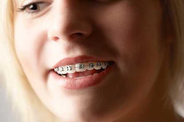 ارتودنسی بعد از بریج دندان