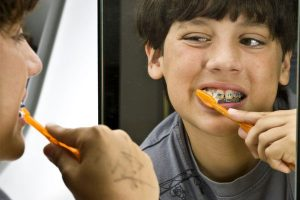 مراقبت بعد از ارتودنسی کردن دندان ها