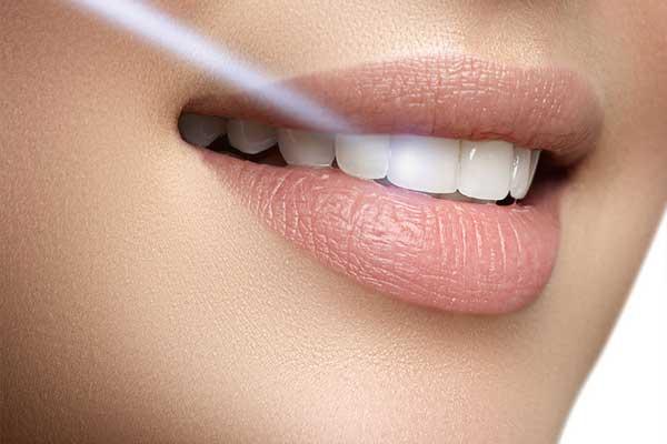مزایای لیزر در دندانپزشکی زیبایی