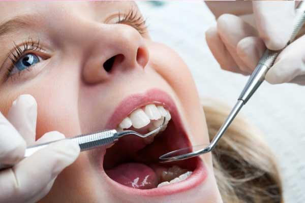 عمر سیلانت دندان