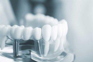بهترین کاندیده های ایمپلنت دندان