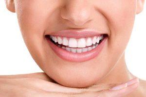 لمینت یا ارتودنسی دندان