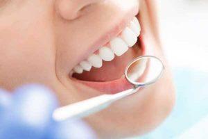آمادگی قبل از لمینت یا ونیر دندان