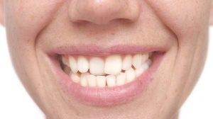 پیچش دندان